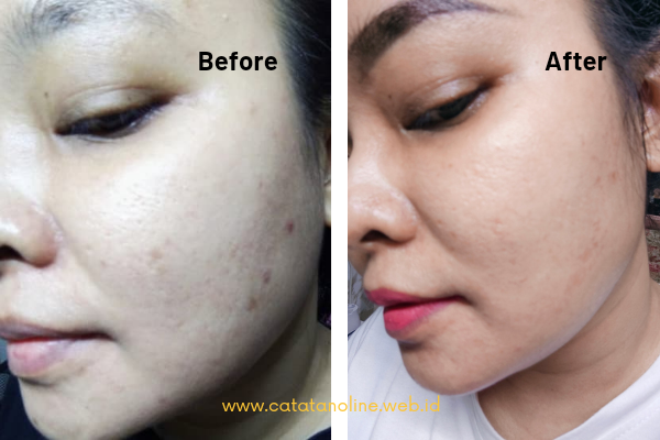 Before-After everShine