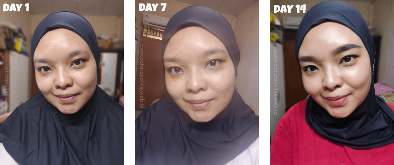 Experience with W3Skincare